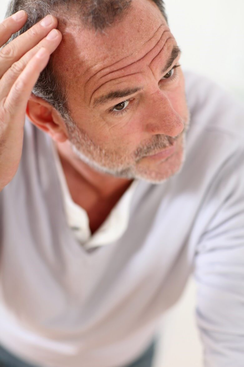 Overcome the Struggles of Unexpected Hair Loss